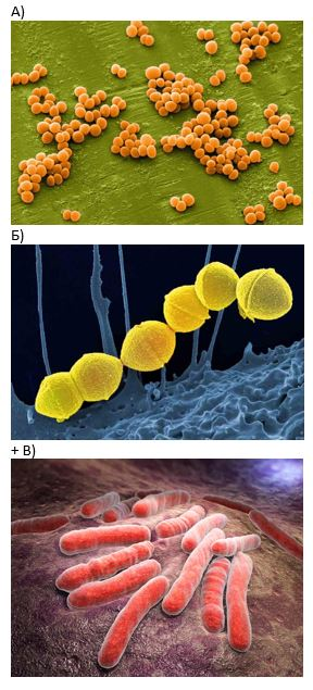 вопрос теста Изображение туберкулезной палочки под микроскопом